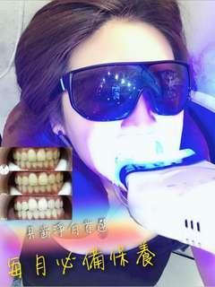 美白牙齒體驗療程