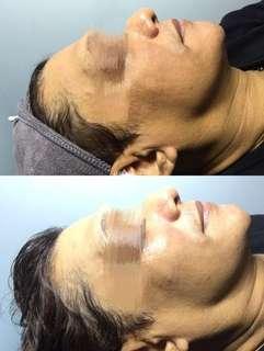 Men's face treatment