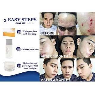 Nlighten Anti-Acne Set