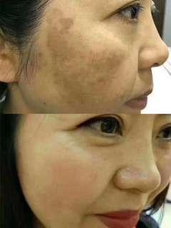 Crystal Dry Peel for pigmentation & pimples skin