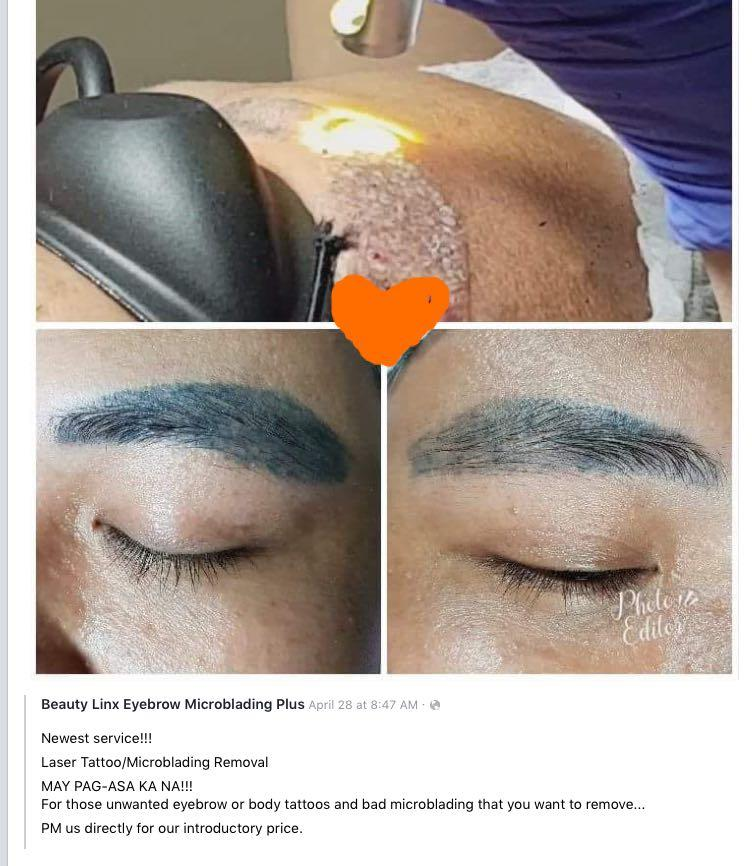 Eyebrow Tattoo Removal on Carousell