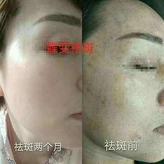 Customize Pigmentation Remover Treatment