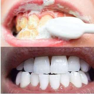 日本進口 洗牙美白牙齒