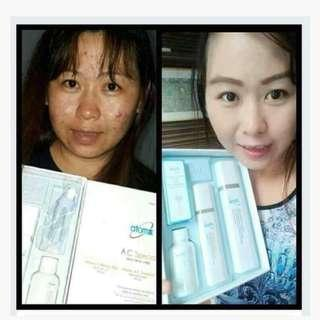 atomy Acne Prone Skin solution from korea