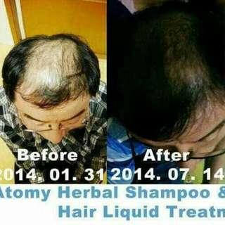 atomy Hair Treatment Liquid for Hair loss & scalp from korea