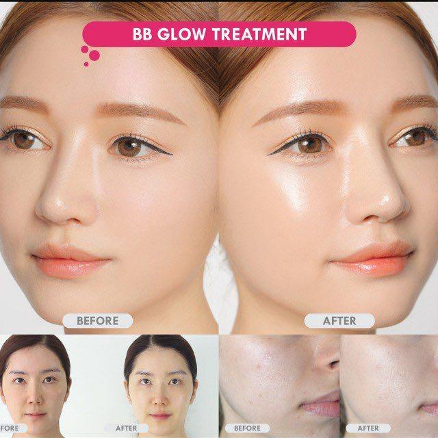 Bb Glow Facial Health Amp Beauty Face Amp Skin Care On Carousell
