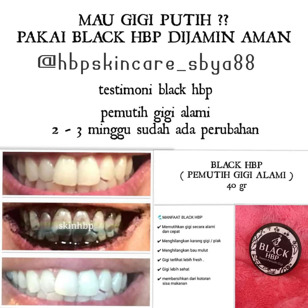 Black Hbp Pemutih Gigi Alami Cepat Health Beauty Skin Bath