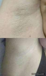 Effective Underarm or Singit Whitening Cream from Thailand