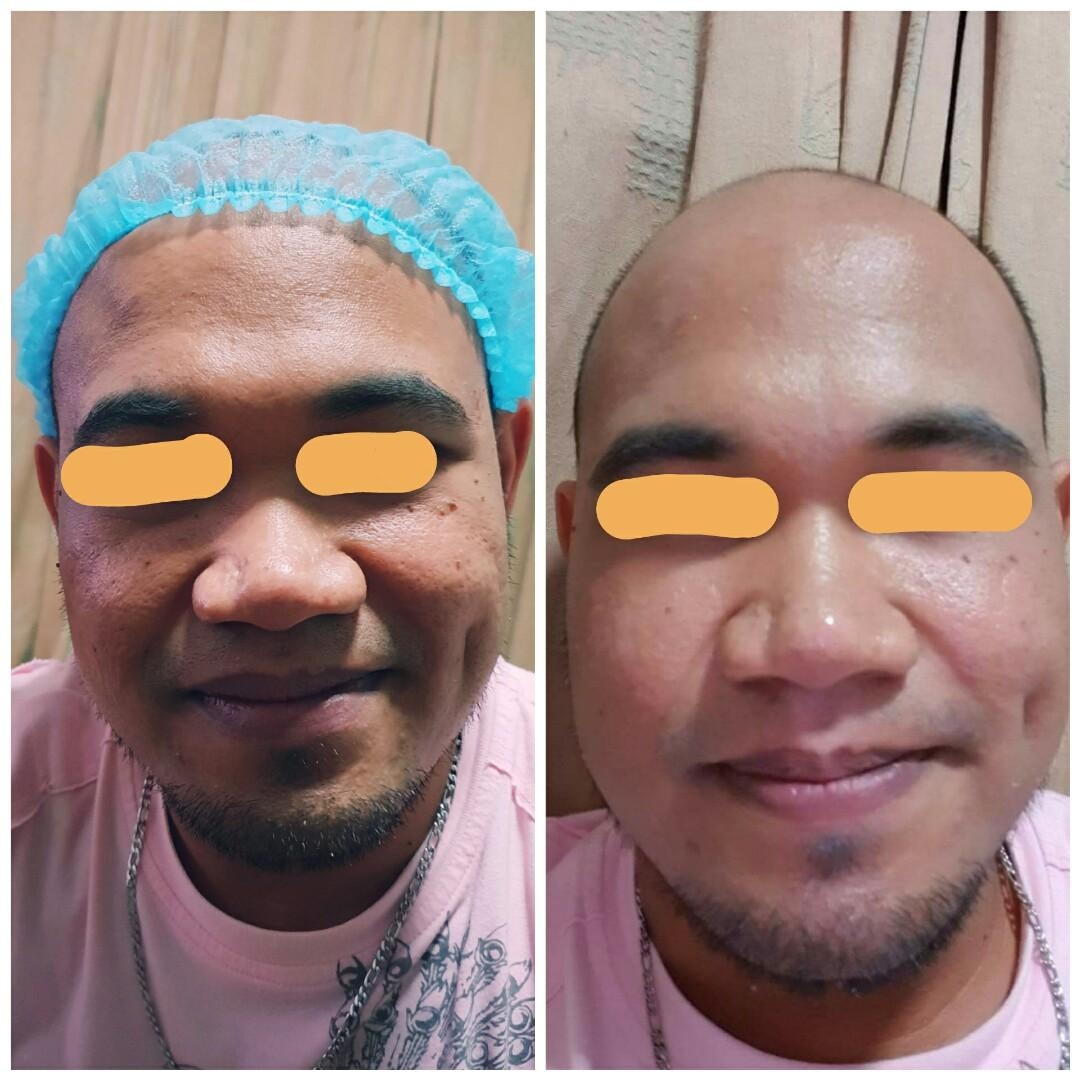 Korean Shine BB Glow Treatment, Health & Beauty, Skin, Bath