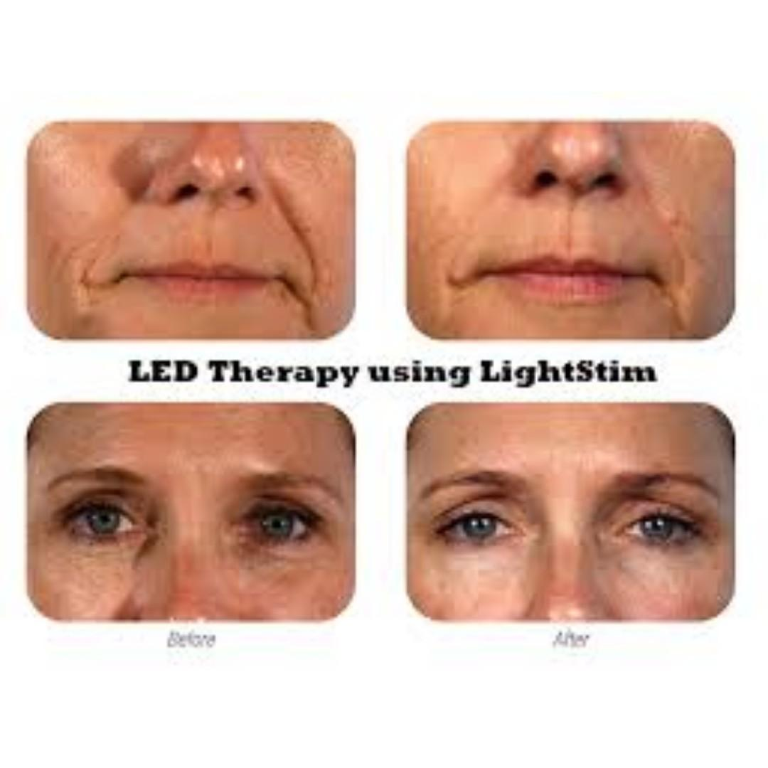 LightStim For Wrinkles: LED Light Therapy, Genuine, Still IN BOX [NO SWAPS, PRICE IS FIRM]