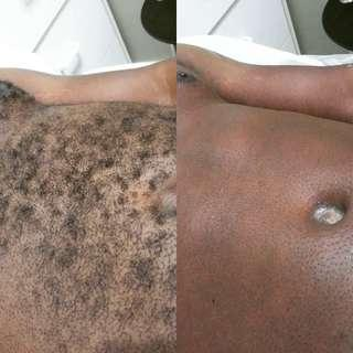 Men's Chest or Back Waxing