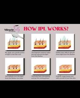 IPL Underarms