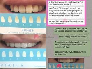 Vi.Aila Teeth Whitening Kit