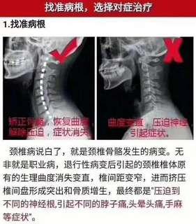 其實每個人都需要一個能幫你晚上放松和修复白天勞損的頸椎,七木利用木珠的硬度,透过晚上8個小時的按摩、牵引、支撑,重新把頸椎牵引到正常的C字向後的正常弧度,有問題的修复問題,没問題就保護肩頸,你get✅到了嗎? 睡硬枕,才健康!