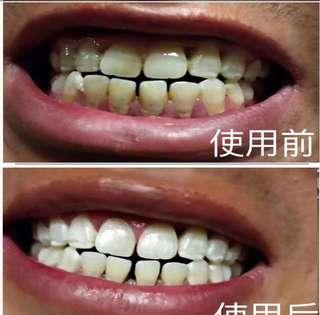 Vi.aila teeth whitening device