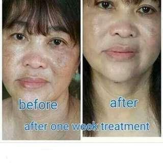 For Pekas/Melasma problem!
