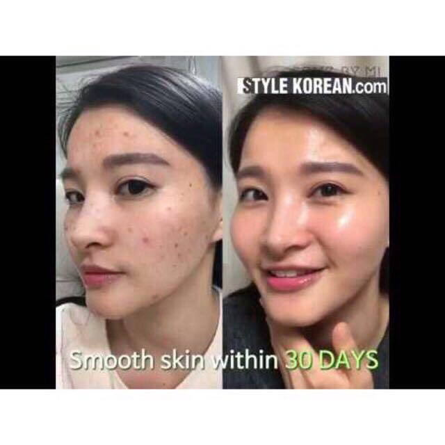 SOME BY MI AHA BHA PHA 30 Days Miracle Serum share in Bottle (5ml)