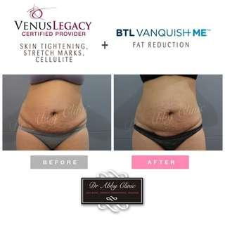 FAT REMOVAL & SKIN TIGHTENING / CELLULITE TREATMENT