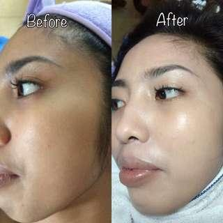 Korean BB Glow Procedure / Semi-permanent makeup