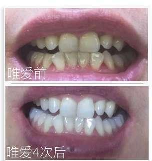 Vi.aila Teeth Whitening Device🔥