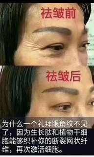 Remove wrinkles, eye lines, smile, ask Sichuan word, look up