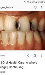 Free root canal treatment