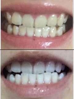 Sales🔥 Teeth Whitening Kit