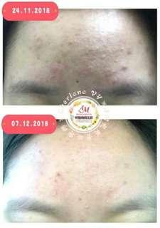 AM Prince Miracle + Derma Lotion