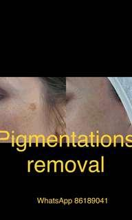Pigmentations, Mole, Oil Seed, Freckles Removal