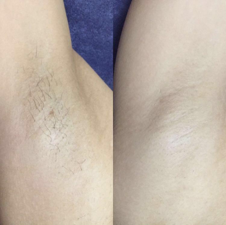 IPL Hair removals / Waxing