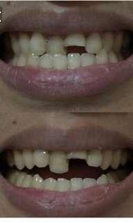 Buat gigi baru gratis