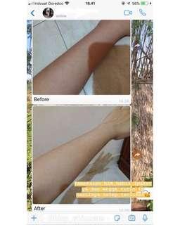 Body whitening premium