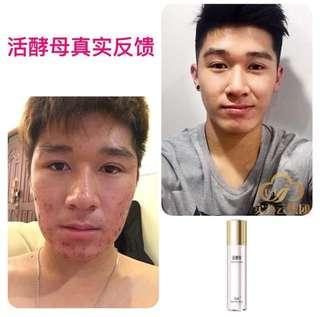 Real Life Result for TST Live Yeast Mask