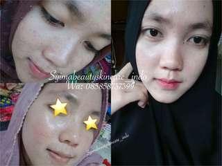 Cream Glowing Kinclong Sbs ORIGINAL MALAYSIA No Mercury No Ketergantungan