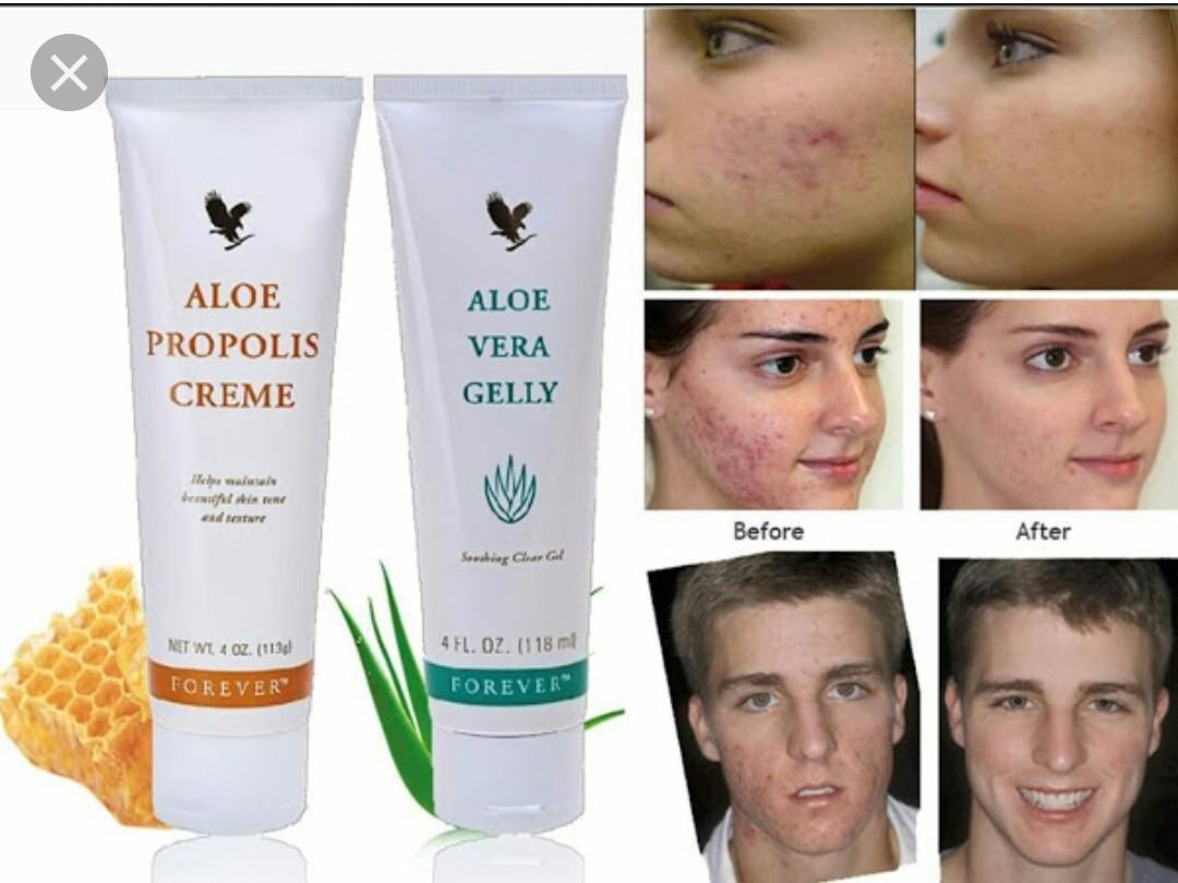 ㊗Acne, eczema, skin issues = Aloe Vera Gelly + Bee propolis