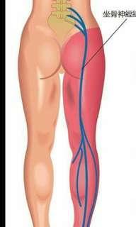 坐骨神經痛!腰、petpet大腿膝蓋拉緊/麻痺