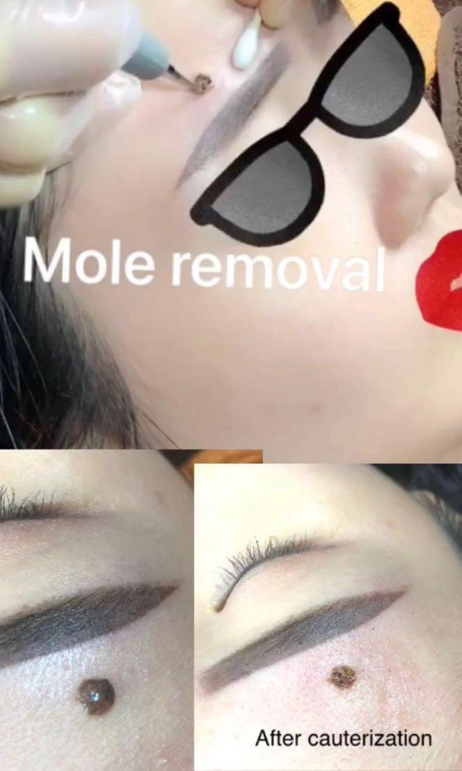 Mole removal at bugis