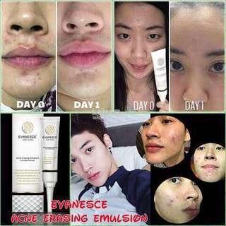 Medicube chanel cosrx avene bioderma laneige garnier shiseido Eucerin caudalie sulwhasoo drjart acne pimple gel scar blemish wrinkles