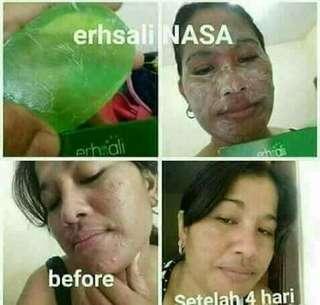 Sabun moka erhsali acne soap