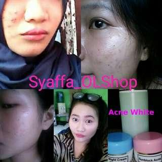 Cream Farma paket Acne Whitening