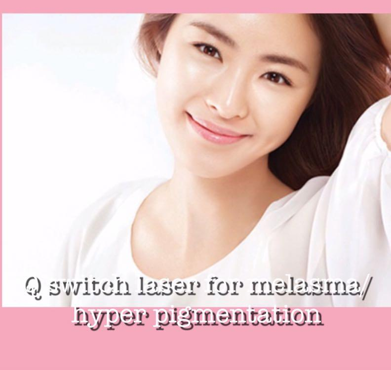 Q Switch Laser for melasma, hyper pigmentation $80