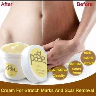 🚚 Stretchmarks removal Pasjel