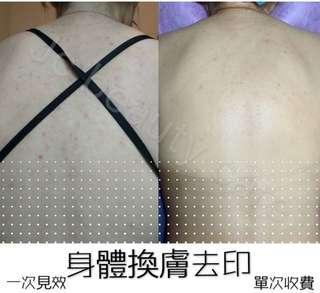 身體美白去印換膚 對付雞皮 毛孔閉塞