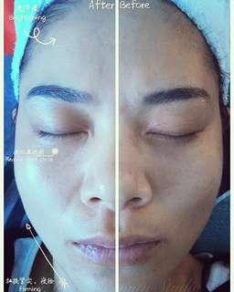 Facial Gua Sha Treatment