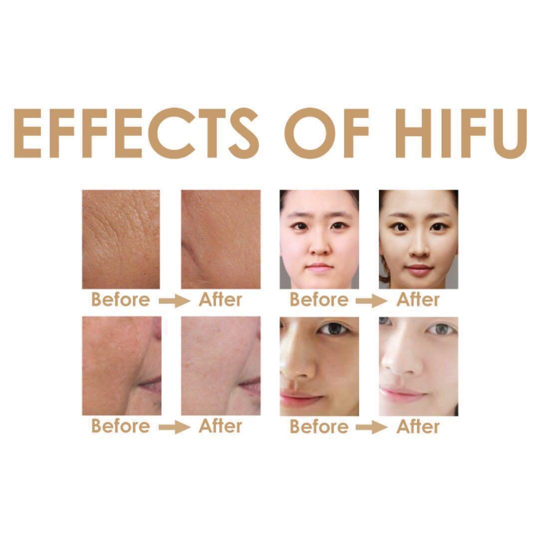 Premium handy home use HIFU device for skin lifting and