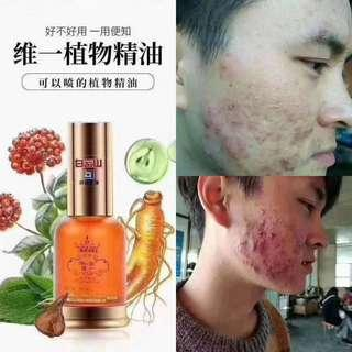 白云山植物精油.  Bai Yun Shan Wei Yi Essential Oil