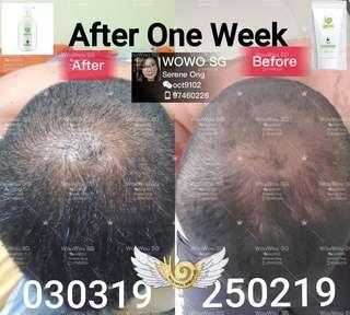 WouWou Pure Ginger Anti-Hairloss Shampoo + Scalp Cleanser