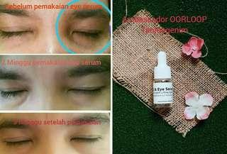 Eye serum oorloop original.😁