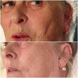Facial that makes a difference IMMEDIATELY