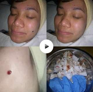 Mole remover(price strt frm rm50 n above)